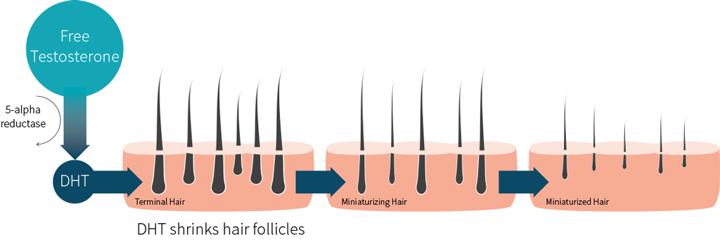 DHT Male Hair Loss